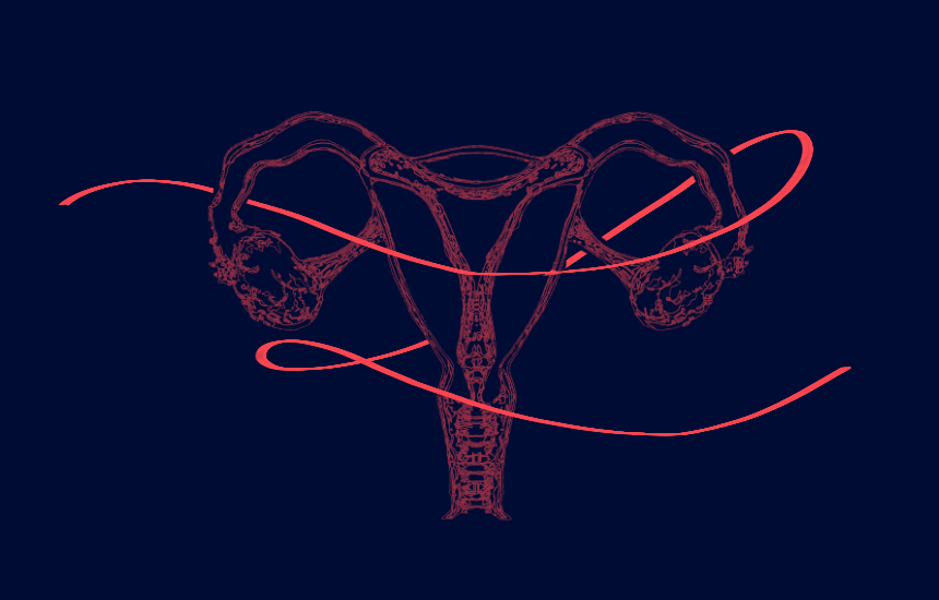 Structural infertility